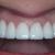 Harris Parkway Dental Care