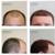 Natural Transplants Hair