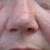 Poole Dermatology