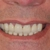 Ashburn Dentistry Today - Dr. Rusznak