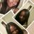 Keys to Hair Growth