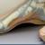 Shenandoah Foot & Ankle Center