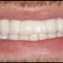 Preferred Dental Care