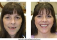 Swiss Denture & Implant Center - Clackamas, OR
