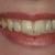 Smiles On Peachtree