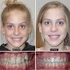 Horner Barrow Orthodontics PC