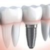 Sonora Dentist