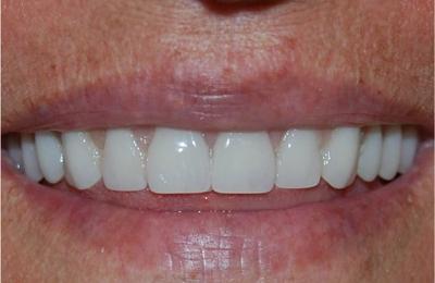 Ridge Road Family Dentistry - Cleveland, OH