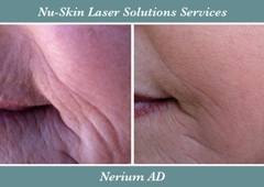 Nu-Skin Laser Solutions - Suffern, NY