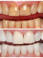 Teeth Whitening using KoR bleaching products