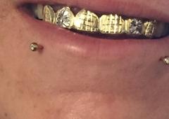 Mesa Gold Teeth LLC - Mesa, AZ