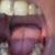 Refresh Dental Boardman