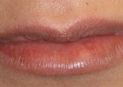 Zuliani Facial Aesthetics: Dr. Giancarlo F. Zuliani MD - Bloomfield Hills, MI