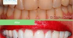 Copley Dental Associates - Boston, MA. #teeth whitening #cosmeticdentist