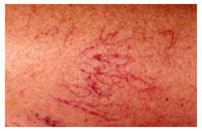 Florida Skin Cancer Dermatology Specialists Pa 3700 Nw 83rd St Gainesville Fl 32606 Yp Com