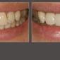 Gentle Dental Spa - Corpus Christi, TX