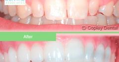 Copley Dental Associates - Boston, MA. #veneer #cosmeticdentist