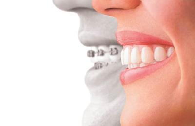 Kaprelian Orthodontics - Sunnyvale, CA