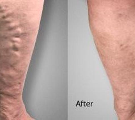 Advanced Varicose Vein Treatments of Manhattan - New York, NY