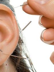 Michael L Miller L.Ac. Acupuncture
