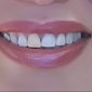 Southern Dental Associates - Houston, TX. was not able to fit in middle crowns. middle crown is placed at an angle. she (purposely I am sure) made this temporary yellow crown for me.