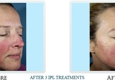 Thrive Aesthetic & Anti-Aging Center - Portland, OR