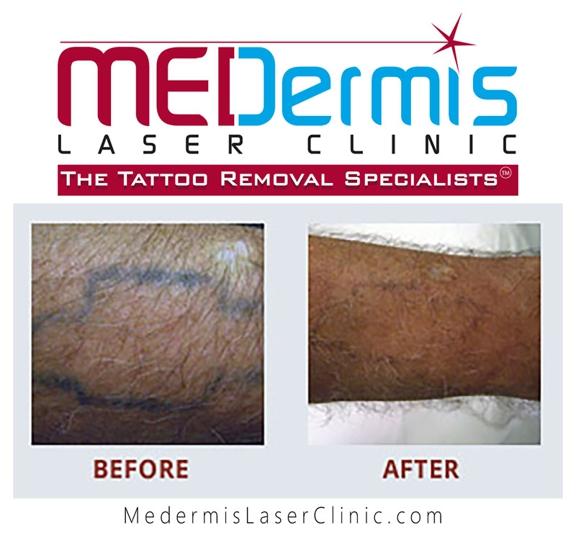 MEDermis Laser Tattoo Removal - San Antonio, TX