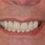 Ashburn Dentistry Today