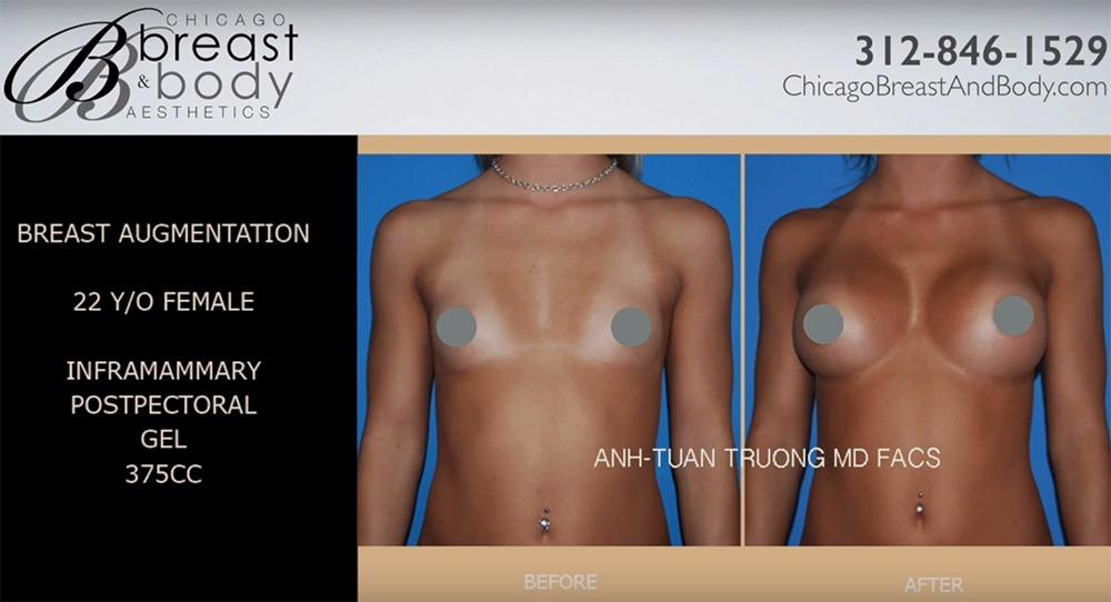 Chicago Breast & Body Aesthetics 1 E Erie St Ste 242, Chicago, IL 60611 -  YP.com