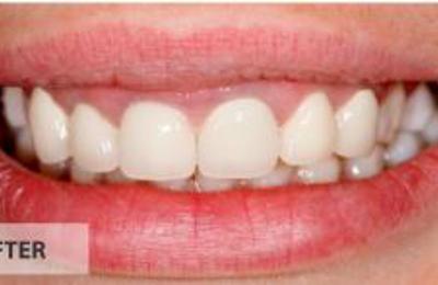 Town Center Dental 905 E Whitestone Blvd Ste D, Cedar Park, TX 78613