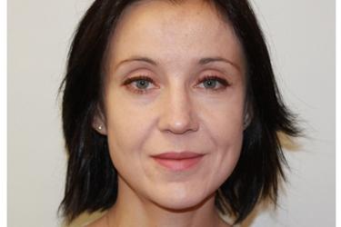 Dr. Agnieszka Kokoszka, MD