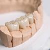 Best Dentistas Hispanos Clinic