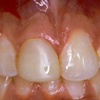 Applebite Dental Care