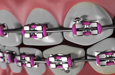 Smiles of Cary Family Dentistry - Cary, NC. Orthodontics