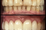 5 Crowns on the upper front teeth to improve spacing color and shape.
